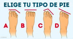 tipo de pie